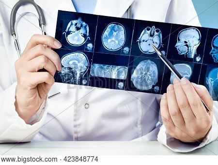 Female Doctors Hand Pointing At X-ray Medical Imaging At A Head Checks