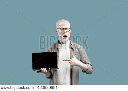 Great Website Advertisement. Surprised Albino Man Showing Laptop Empty Screen, Pointing On It Over T