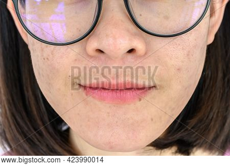 Close Up Of Woman Face Has Variety Problems On Her Skin (such As Acne, Pimple, Pores And Melasma Etc