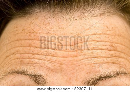 Wrinkled Forehead Or Raised Eyebrows