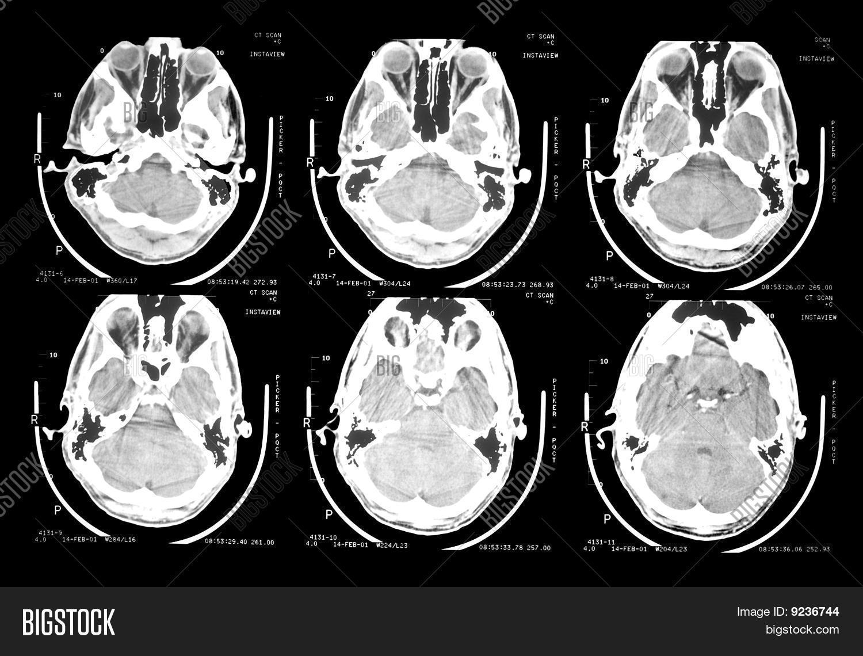 ct scan brain - Yelom.myphonecompany.co