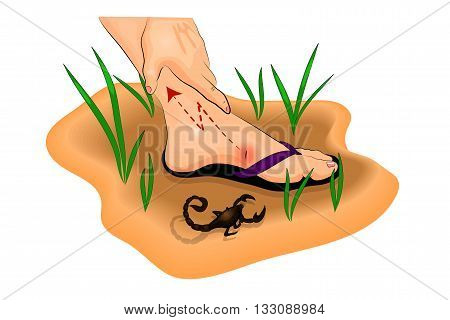 illustration of a Scorpion sting on the foot