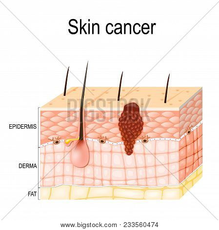 Melanoma. Skin Cancer Originates From Melanocytes. Layers Of The Human Skin.  Epidermis (horny Layer