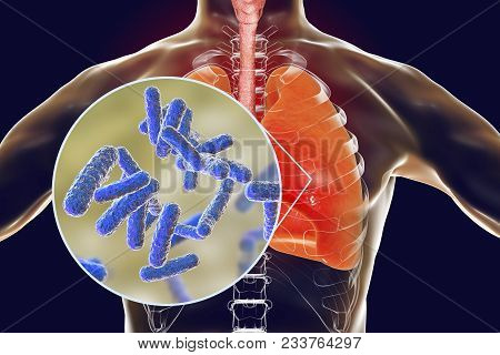 Bacteria Pneumonia, Medical Concept, 3d Illustration Showing Human Lungs And Close-up View Of Rod-sh