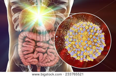 Treatment Of Hepatitis C Virus Infection, Conceptual Image, 3d Illustration Showing Destruction Of H