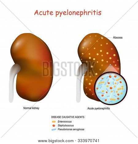 Acute Pyelonephritis. Normal Kidney And Kidney With Abscesses. Closeup Of Bacteria That Cause This D