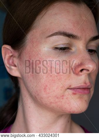 Close-up Of The Skin Of A Patient With Papulopustular Rosacea