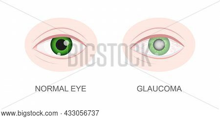 Eye Healthy And With Glaucoma Closeup View. Normal And Hazy, Redness, Watery Eyeball. Anatomically A