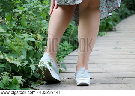 Girl With Bare Legs Holding On To The Shin Standing On A Wooden Path Near Tall Stinging Nettle. Leis