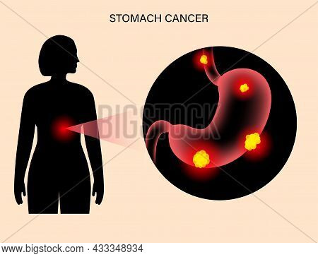 Pain Or Inflammation In Stomach. Cancer, Tumor Or Ulcer In The Digestive System. Human Body Medical