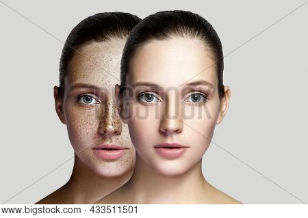 Closeup Portrait Of Beautiful Brunette Woman With And Without Freckles On Face. Healing And Removing