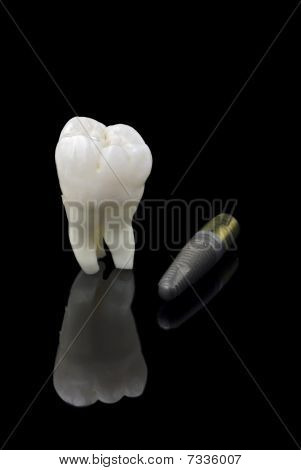 Human Tooth And Titanium Implant
