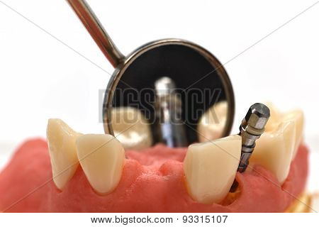 Dental Implant And Mirror