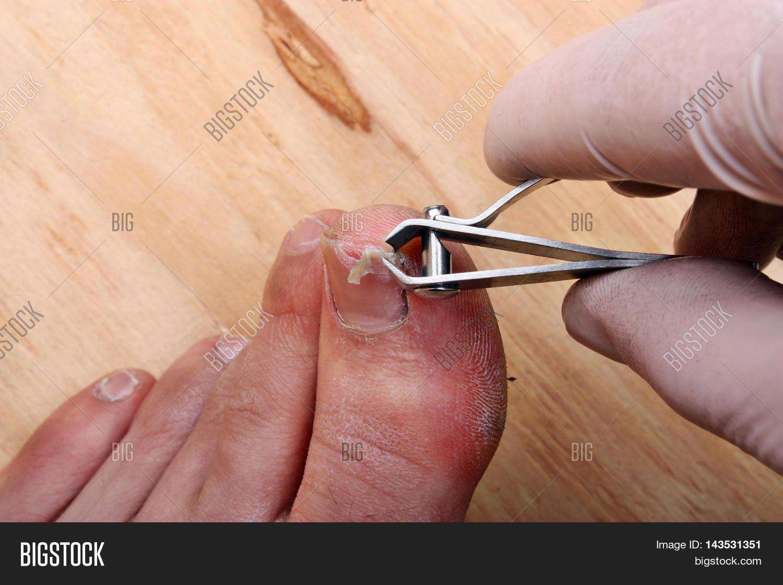 Surgery On Broken Toe Nail Man Image & Photo | Bigstock