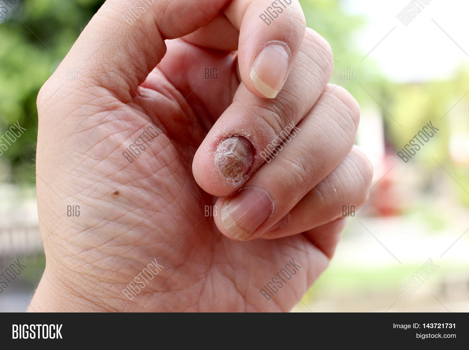 Fungus Infection On Nails Hand, Image & Photo | Bigstock