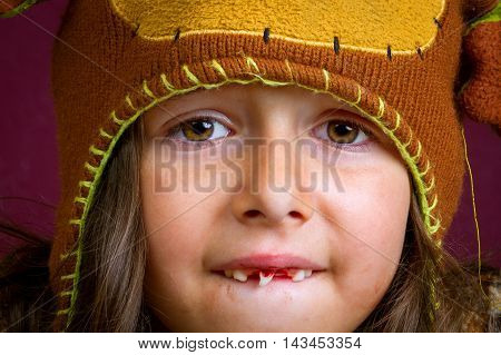 A closeup image of a little girl with a tooth so loose that it is turned sideways in her mouth. She looks like she is in pain and is wearing an aviator style hat.