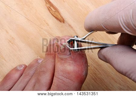 Surgery on a broken toe nail a man