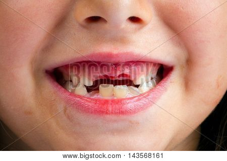 A close up shot of the mouth of a little girl who has just lost her two front teeth. The holes are still bloody and you can see a new tooth starting to emerge from the gum.