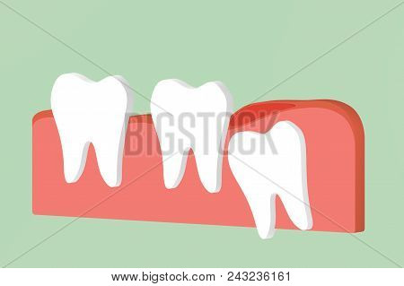 wisdom tooth ( angular or mesial impaction ) with inflammation affect to other teeth - dental cartoon 3d render flat style cute character for design poster