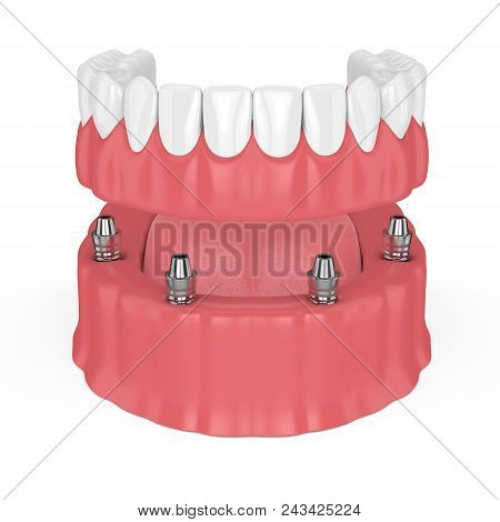 3D Render Of Removable Full Implant Denture