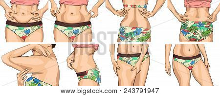 Set Women With Fat Belly. The Girl Clamps The Fold Of The Belly With Both Hands. Female Hands Touchi
