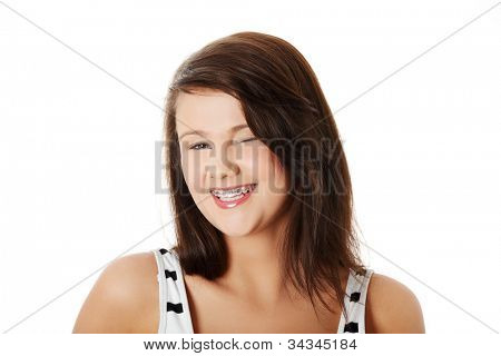 Happy young woman wearing braces is smiling and winking. Pretty cheerful brunette wearing white and black top. Isolated on the white background.