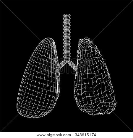 Healthy And Sick Lung With Trachea Bronchi Internal Organ Human. Pulmonology Medicine Science Techno