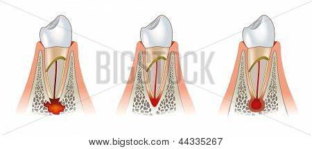 Diseases of teeth dental scheme. Periodontitis