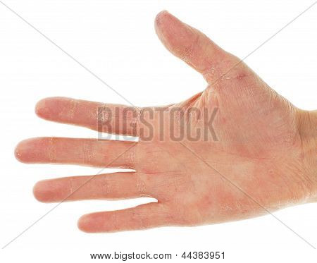 Eczema Dermatitis On Palm Of Hand And Fingers