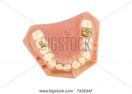 Dental Model (with Different Treatments)