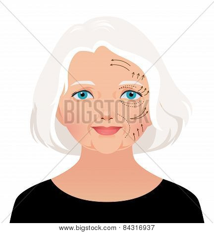 Elderly Woman Cosmetic Rejuvenation Of The Face Lift