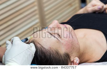 Injections on the face with cosmetic procedures woman having beauty treatment . poster