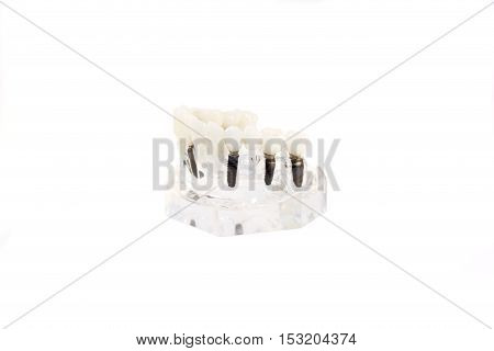 glass jaw model with implanted dentures. Isolated poster