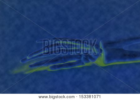 X-ray human skeleton bone fractured hand rontgen