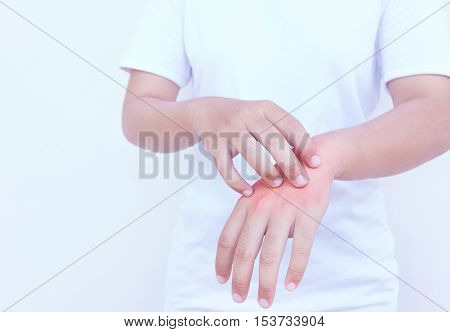Woman scratching the itch on her hand Healthcare Concept.