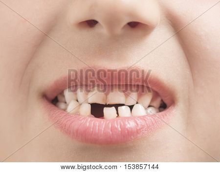 Young boy showing his missing milk tooth
