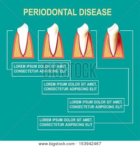 Periodontal disease Vector illustration Medical poster about the stages of development of periodontal disease