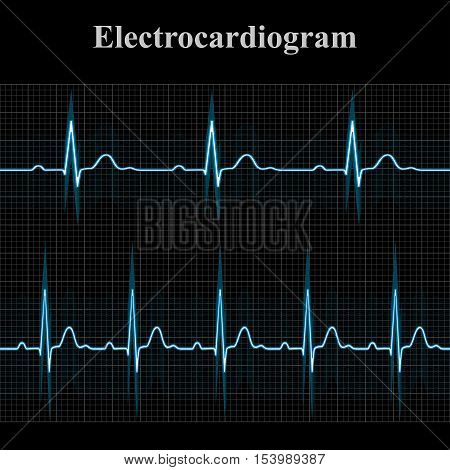 Normal and tachycardial ecg charts 2d medical vector illustration on dark grid background eps 8
