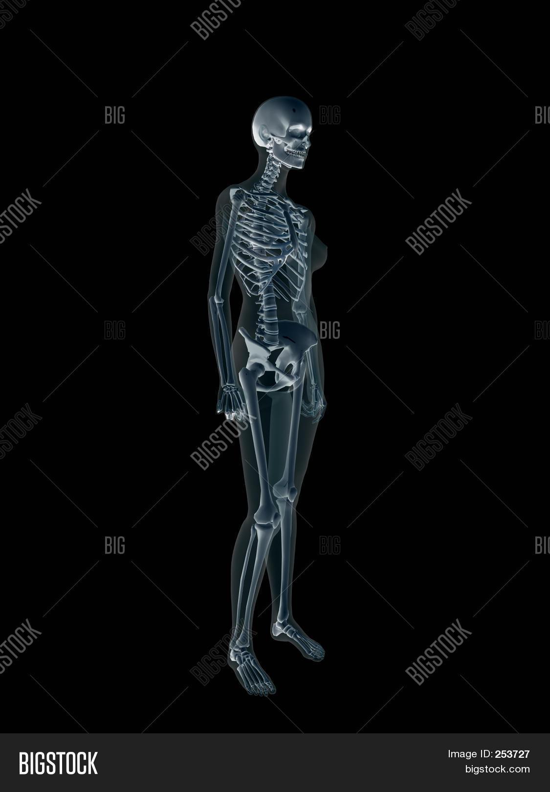 Imagen y foto Radiografí, Radiografí Del Cuerpo   Bigstock