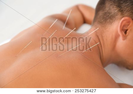 Young Man Undergoing Acupuncture Treatment In Salon, Closeup