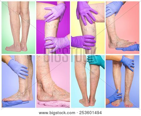 Lower Limb Vascular Examination Because Suspect Of Venous Insufficiency. The Female Legs On Colored