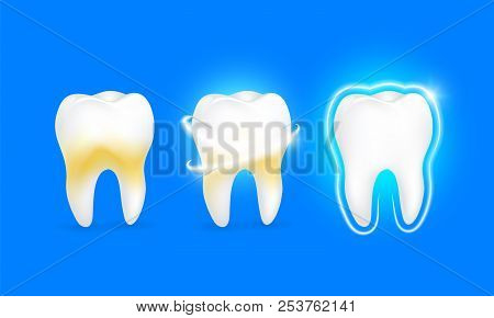 Set Of  Clean And Dirty Tooth On Blue Background, Clearing Tooth Process. Teeth Whitening. Dental He