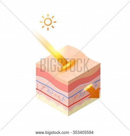 Uv Ray From Sun Penetrate Into Epidermis Of Skin Cross-section Of Human Skin Layers Structure Skinca