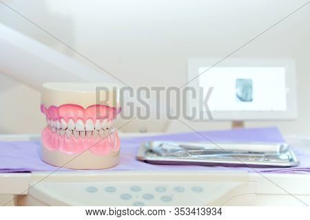 Tooth Implant False Teeth. Dentistry And Healthcare Concept At Dental Clinic.