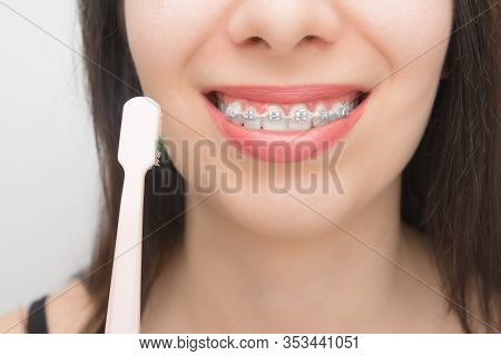 Cleaning Teeth With Dental Braces By Pink Brush. Happy Woman With Brackets On The Teeth After Whiten