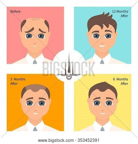 Hair Transplantation Surgery Result In Men After Three, Six And Twelve Months