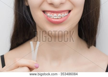 Applying Orthodoentic Wax On The Dental Braces. Brackets On The Teeth After Whitening. Self-ligating
