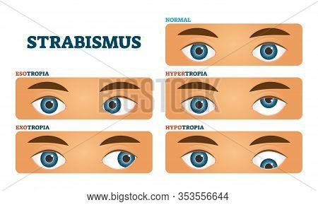 Strabismus Or Cross Eyed Vision Condition, Vector Illustrations. Example Collection With Esotropia,