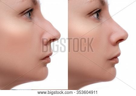 Young Woman Before And After Rhinoplasty And Nose Hump, Shape Correction On White Background, Cosmet