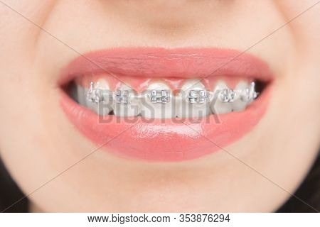 Close Up To Dental Braces. Brackets On The Teeth After Whitening. Self-ligating Brackets With Metal
